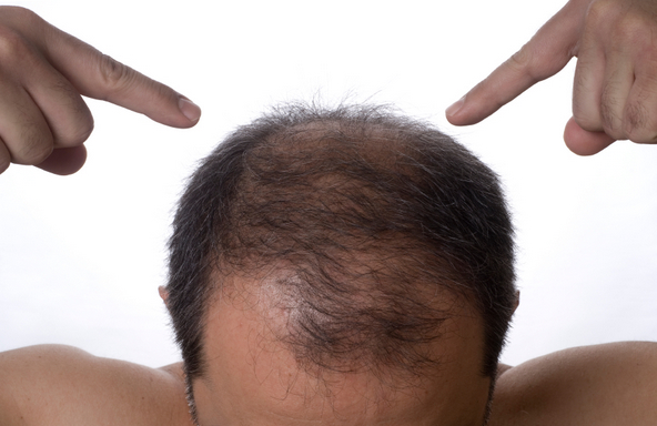 FUE hair transplant cost abroad - Choose wisely: Budapest, Hungary
